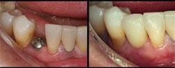 οδοντικά-εμφυτεύματα